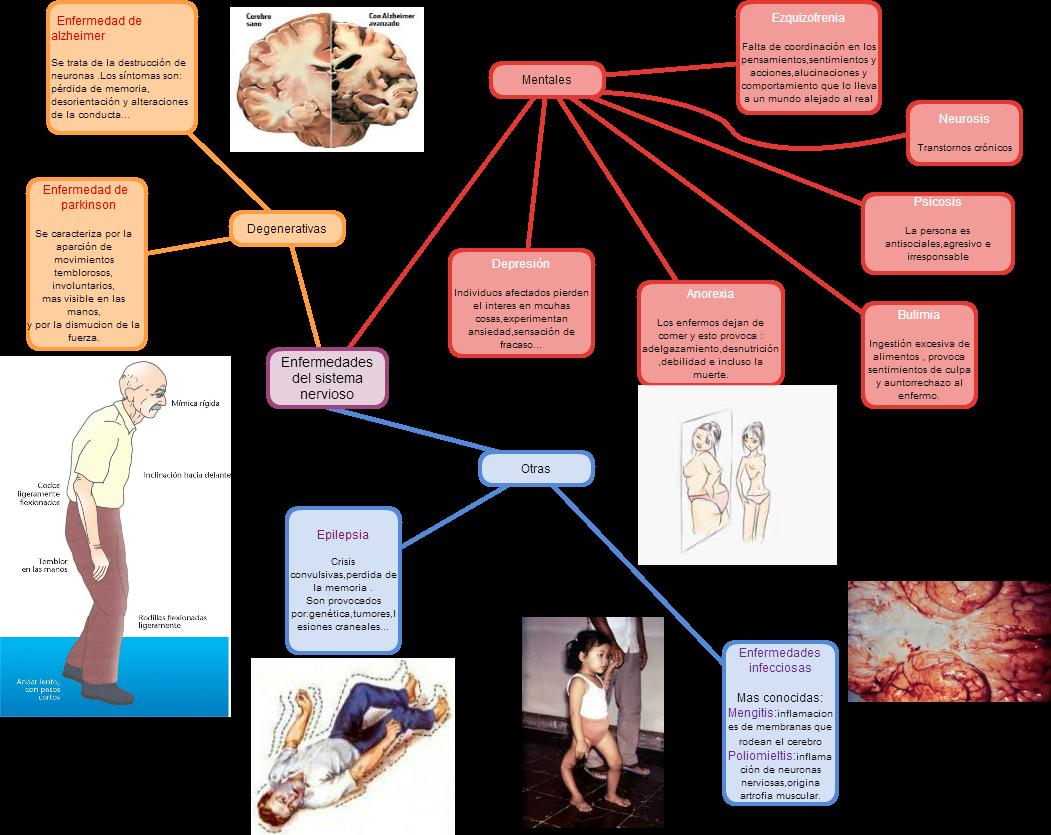 Cacoo - Enfermedades del sistema nervioso